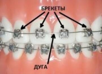 Дуги для брекетов — важная часть для исправления неровных зубов