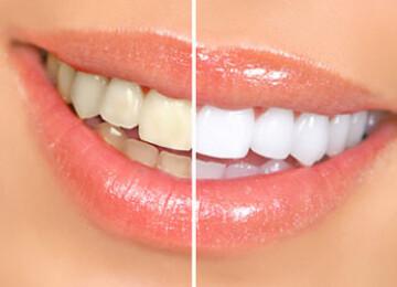 5 правдивых фактов об отбеливании зубов