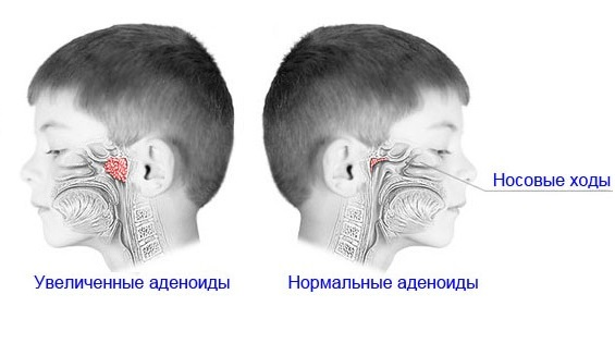 Adenoidit-u-detej-simptomy.jpg