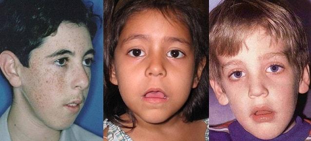 adenoidnyy-tip-lica.jpg