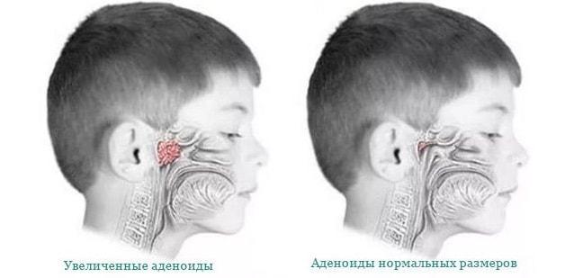 adenoidy-u-detej.jpg