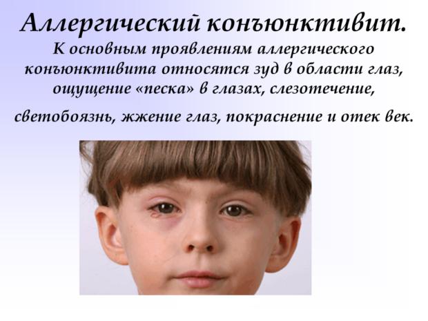 allergicheskyj-konjuktivit-e1508570900310.png