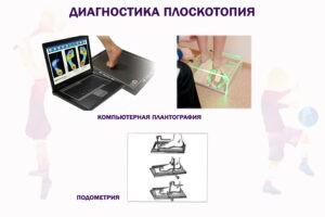 Diagnostika-ploskostopiya-300x200.jpg