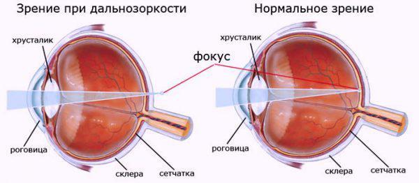 diagnostika_i_lechenie_gipermetropii-600x262-8.jpg