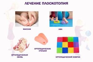 Lechenie-ploskostopiya-300x200.jpg