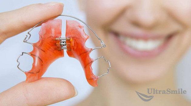 Ortodonticheskie-plastinyi.jpg