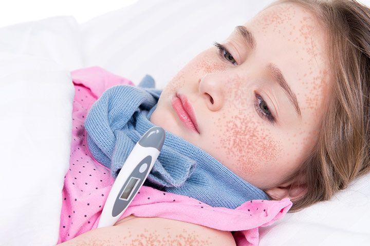scarlet_fever_in_children_Treatment_1.jpg