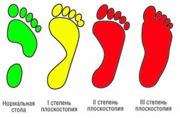 stepeni-ploskostopiya-600x395.jpg