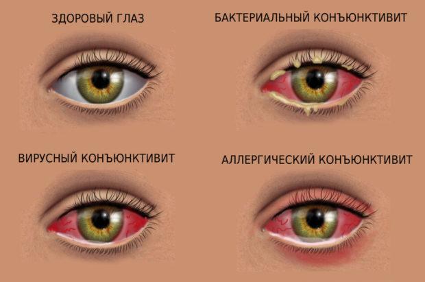 vidy-konjuktivita-e1508570551972.jpg