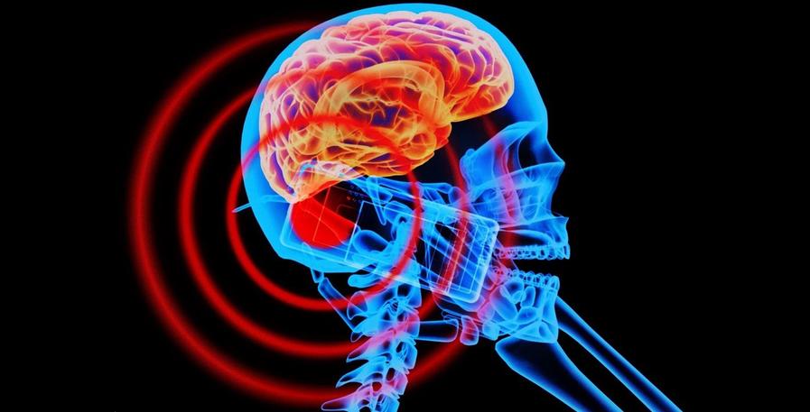 vliyanie-yelektromagnitnih-izluchenii-na-mozg-cheloveka.png